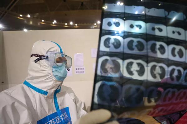 Coronavirus: Personas con síntomas graves muestran tormenta de citoquinas