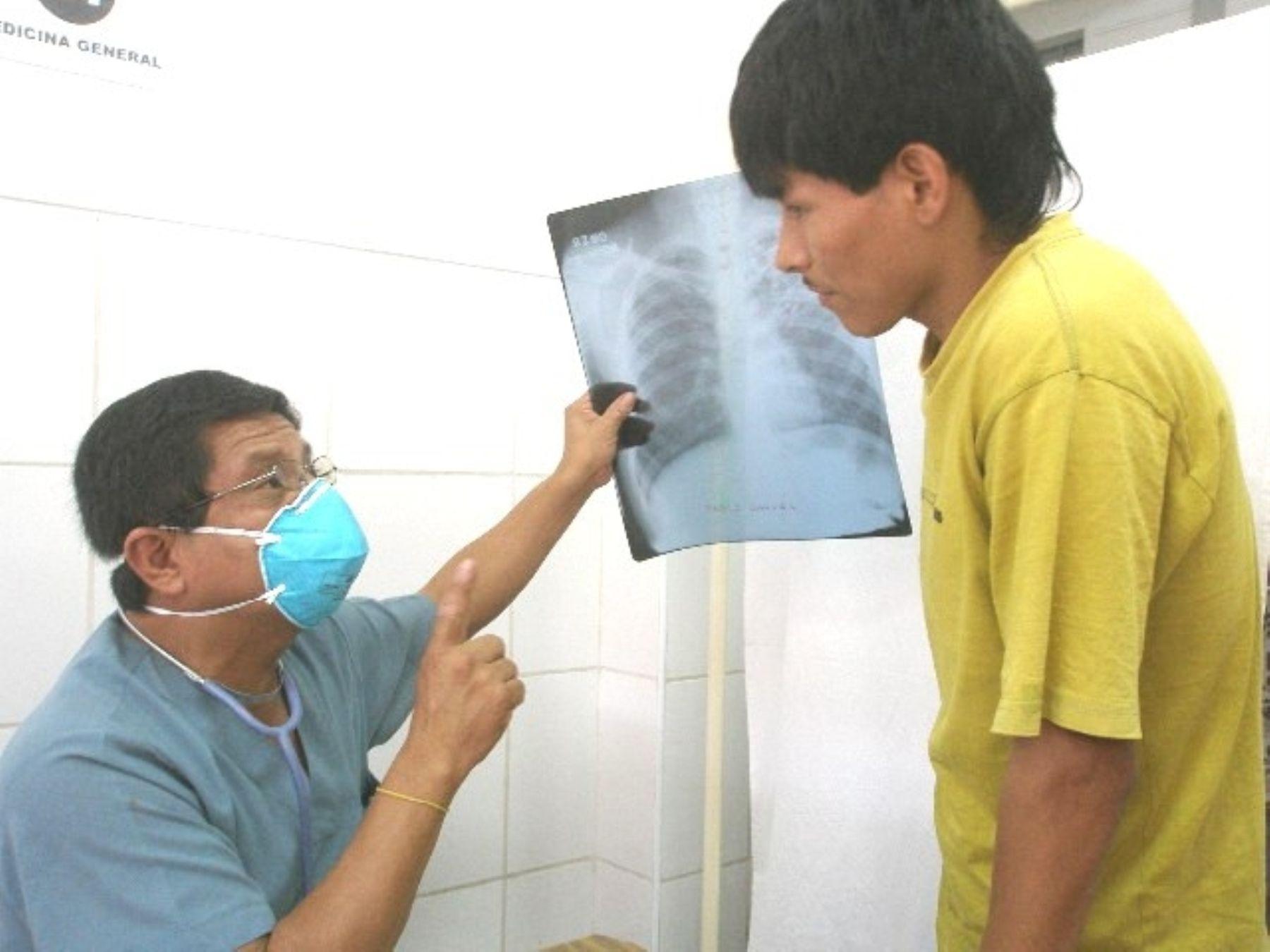 Tuberculosis y pobreza