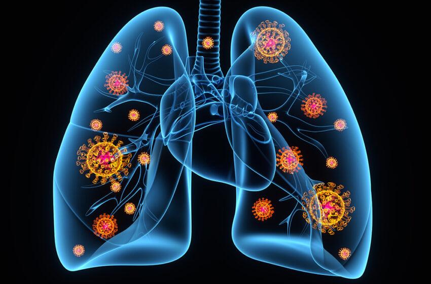 Los órganos y las consecuencias del COVID-19